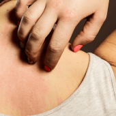 How to Recognize Bed Bug Bites